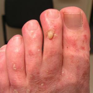 Premalignant Lesions