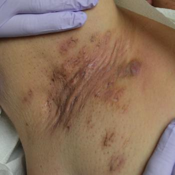 Common Bacterial Skin Infections