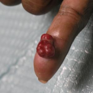 Benign Lesions, Part I
